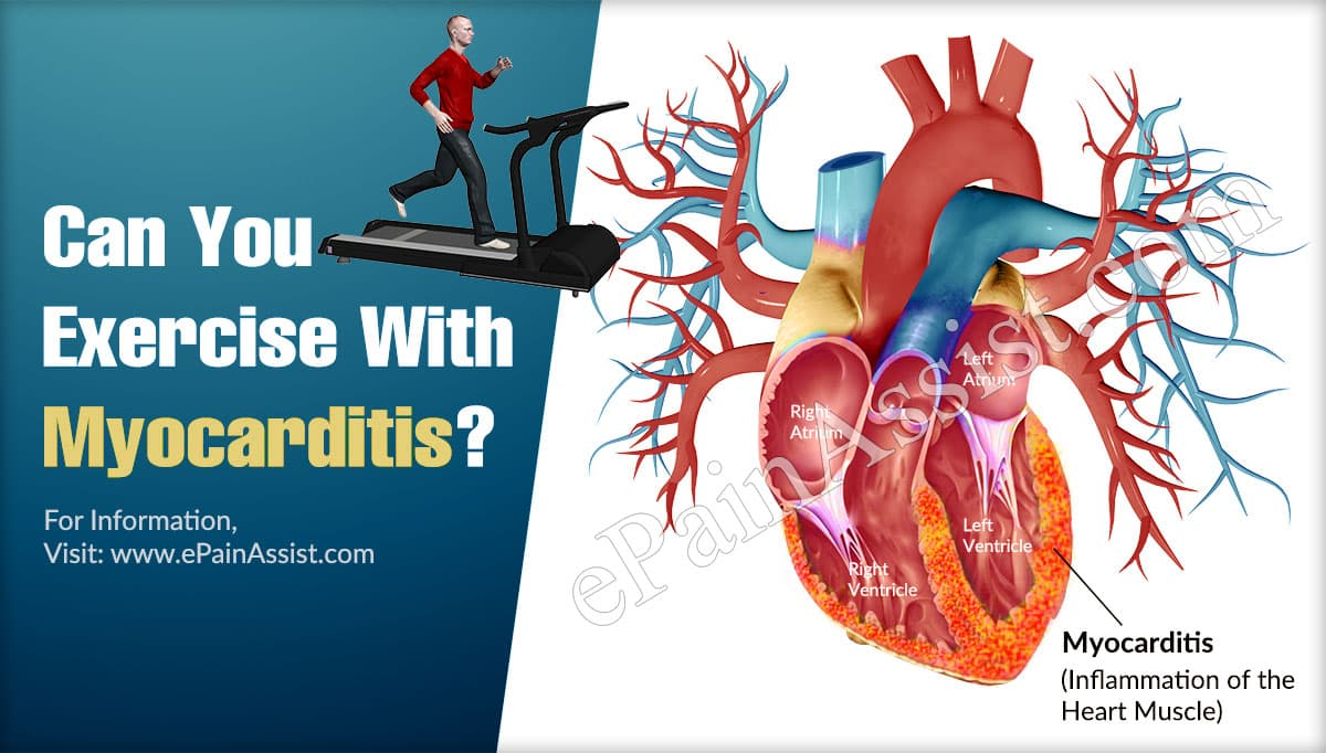Can You Exercise With Myocarditis?
