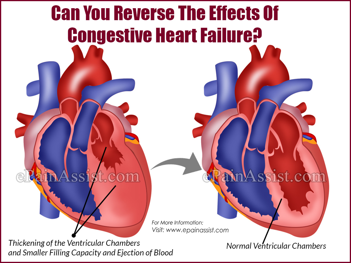 Can You Reverse The Effects Of Congestive Heart Failure?