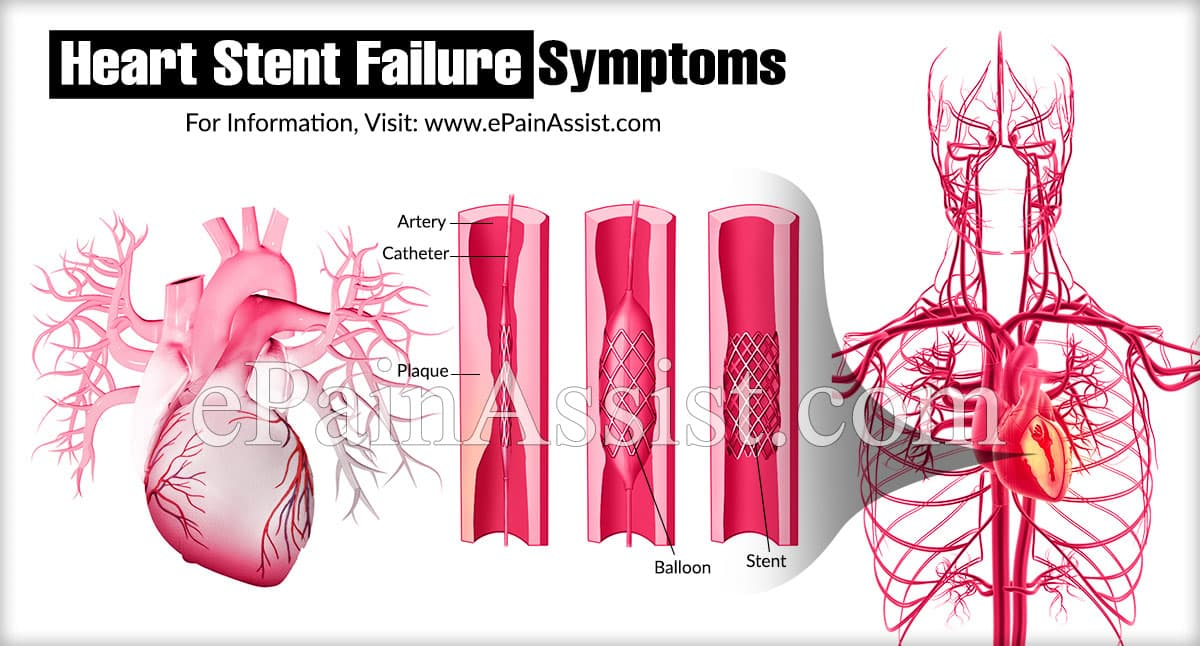 Heart Stent Failure Symptoms