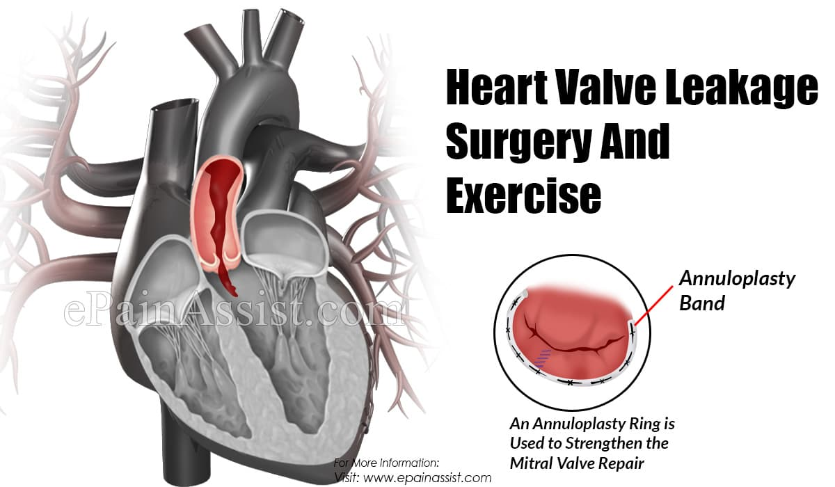 Heart Valve Leakage Surgery And Exercise