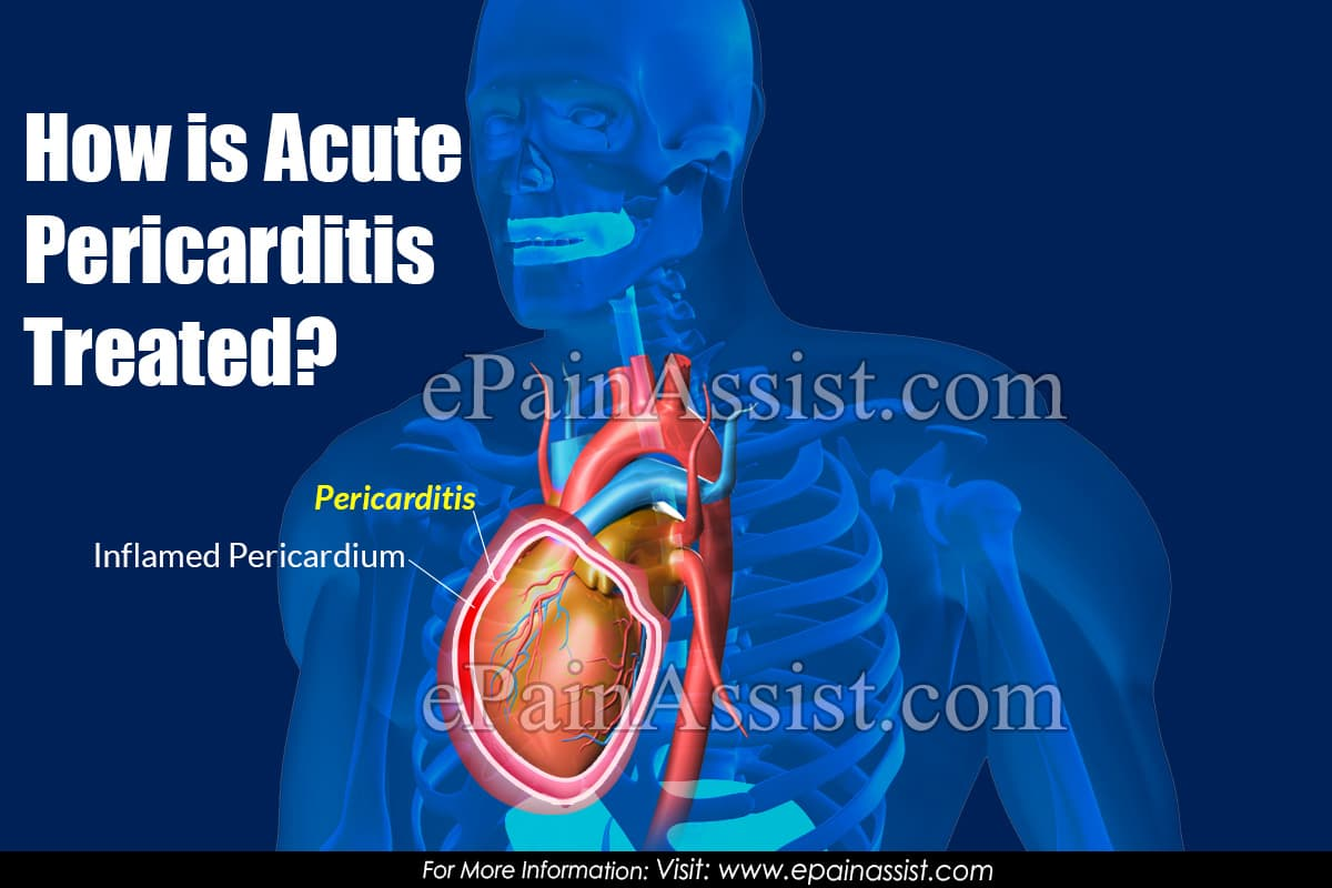 How is Acute Pericarditis Treated?