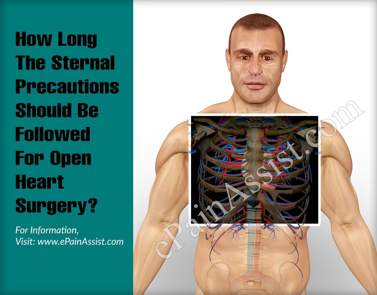 How Long The Sternal Precautions Should Be Followed For Open Heart Surgery?
