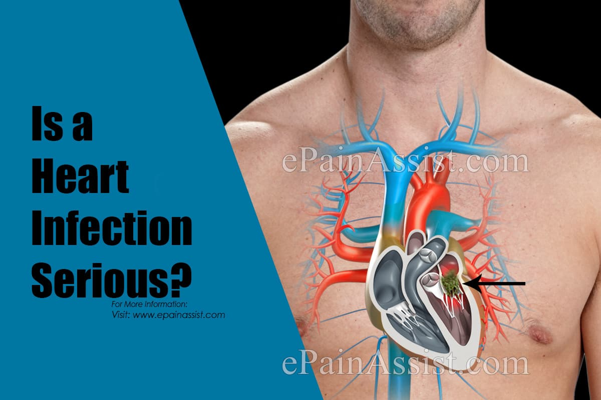 Is a Heart Infection Serious?