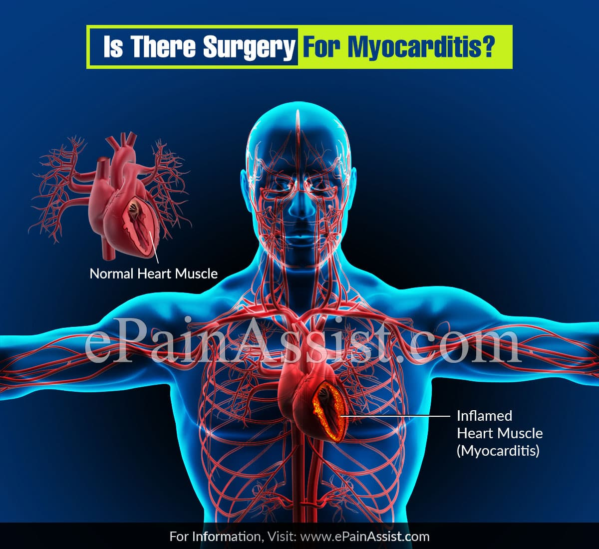 Is ThereAny Surgery For Myocarditis?