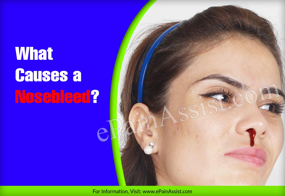 What Causes a Nosebleed?