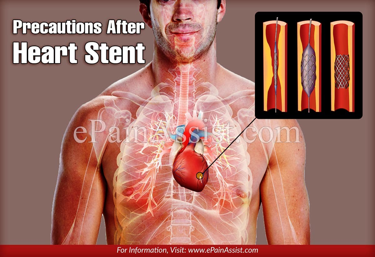 Precautions After Heart Stent