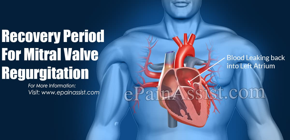 Recovery Period For Mitral Valve Disease