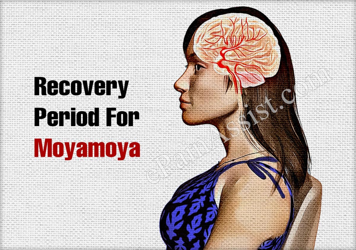Recovery Period For Moyamoya
