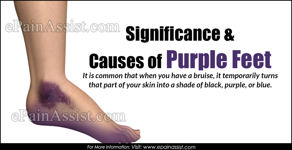 Significance & Causes of Purple Feet