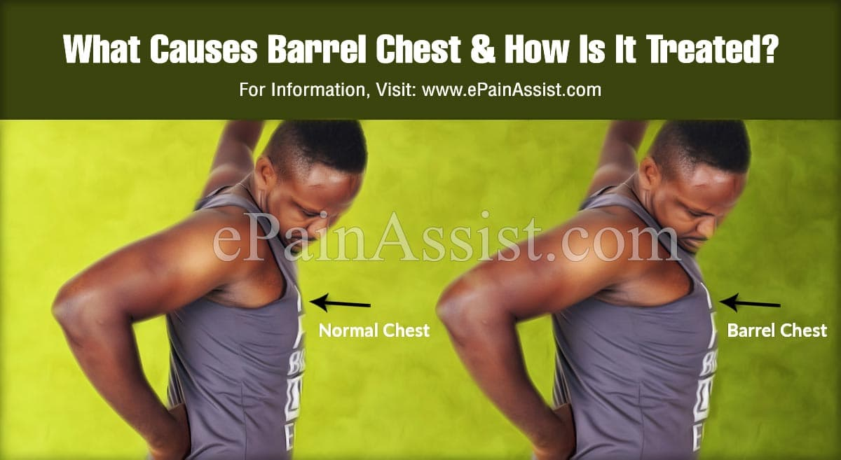 What Causes Barrel Chest?