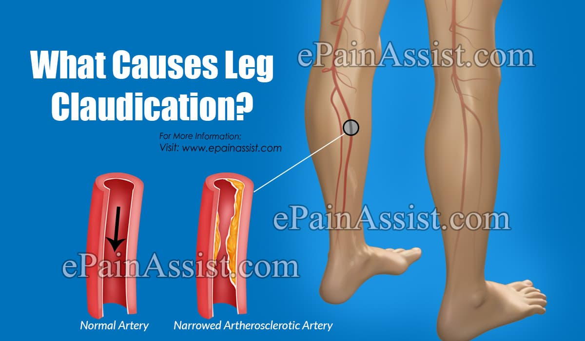 What Causes Leg Claudication?
