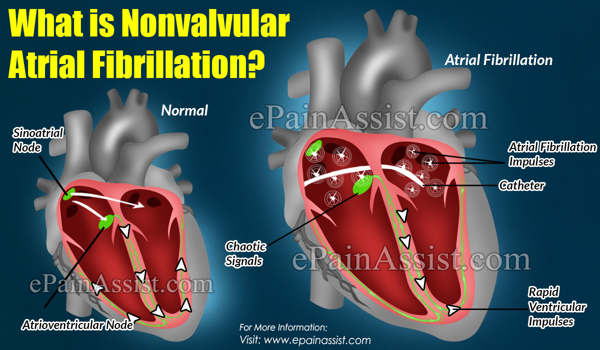 What Is Nonvalvular Atrial Fibrillation?