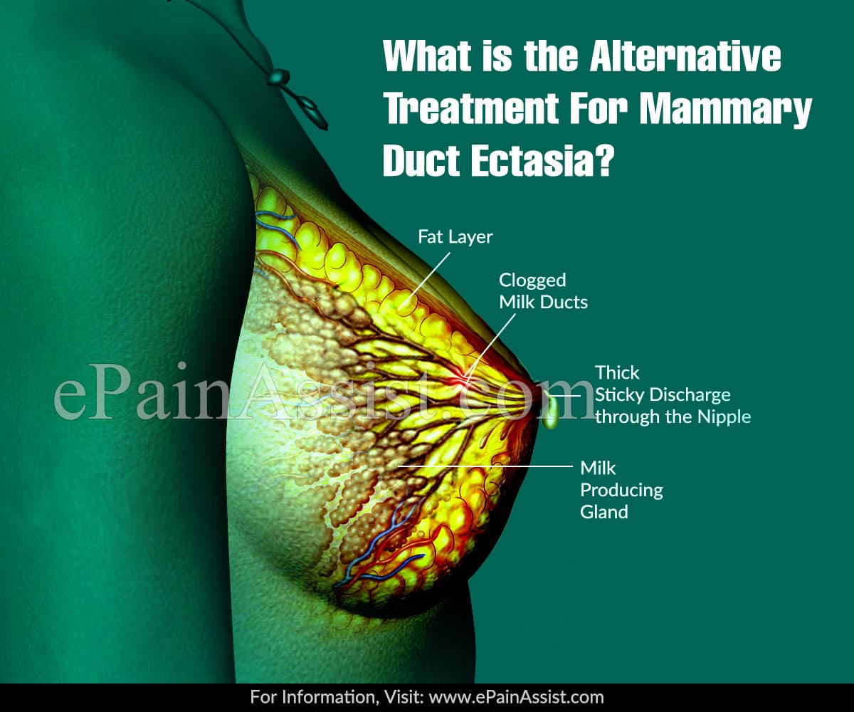 What is the Alternative Treatment For Mammary Duct Ectasia?