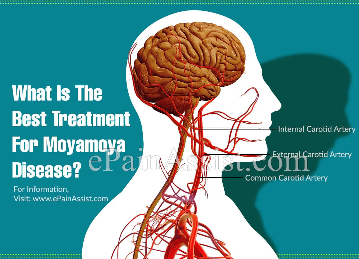 What Is The Best Treatment For Moyamoya Disease?