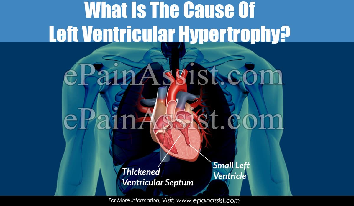 What Is The Cause Of Left Ventricular Hypertrophy?