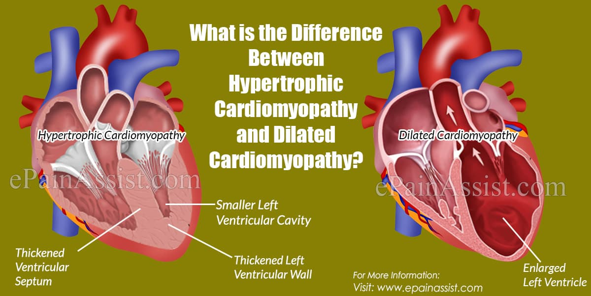 What is the Difference Between Hypertrophic Cardiomyopathy and Dilated Cardiomyopathy?