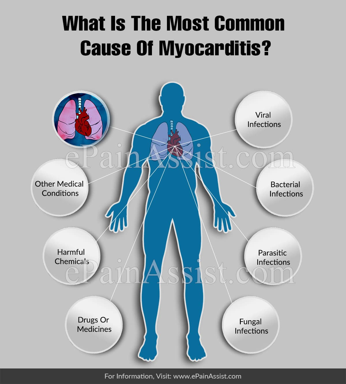 What Is The Most Common Cause Of Myocarditis?