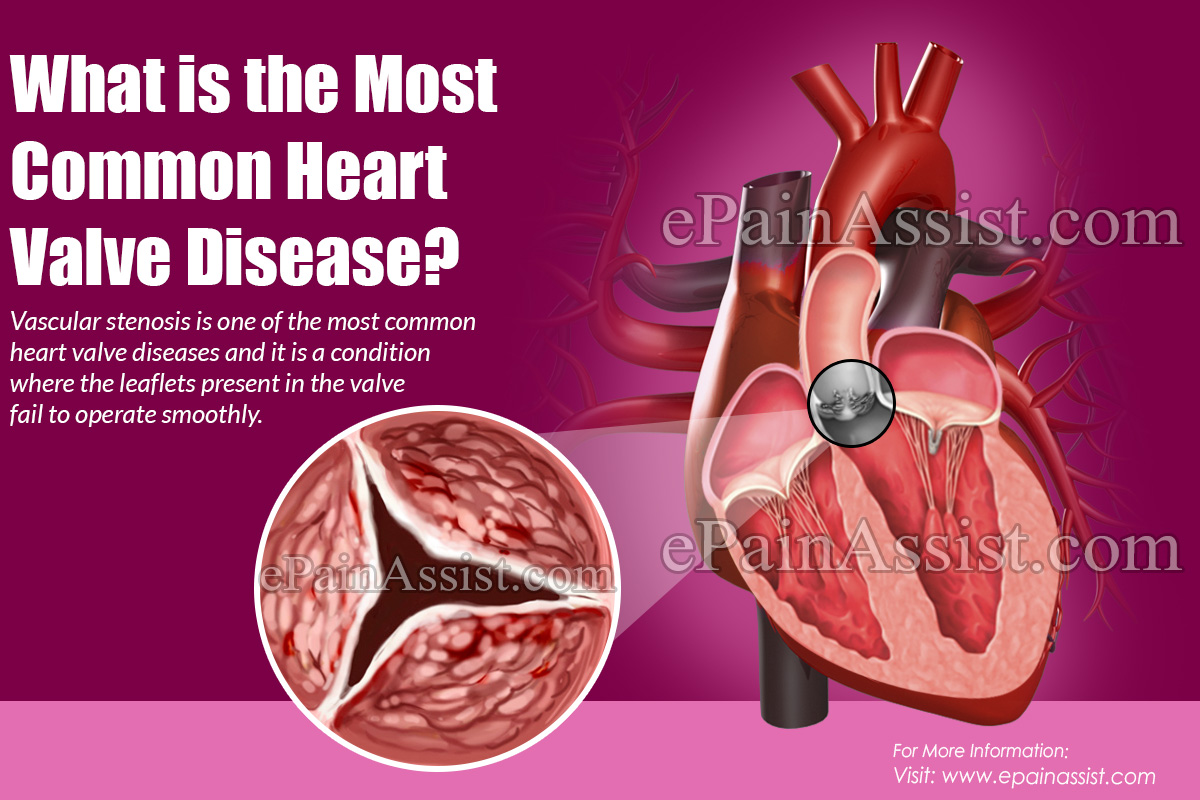 What is the Most Common Heart Valve Disease?
