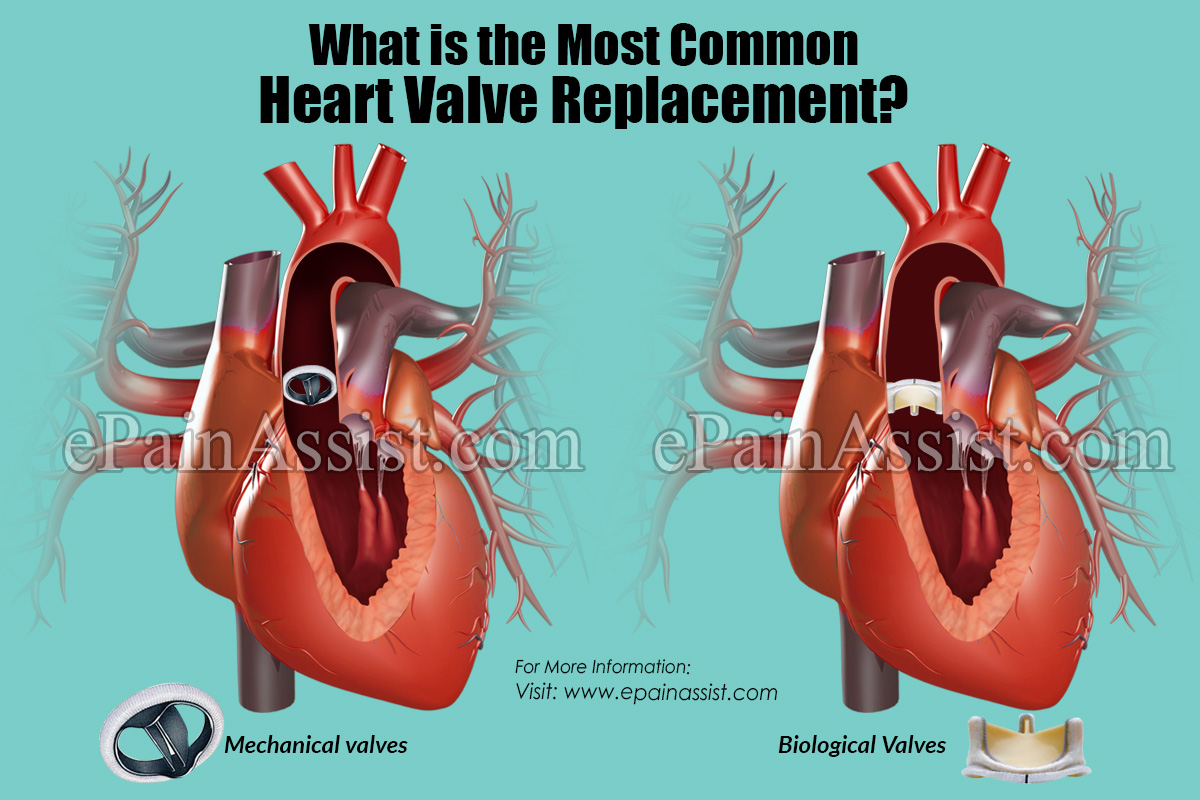 What is the Most Common Heart Valve Replacement?