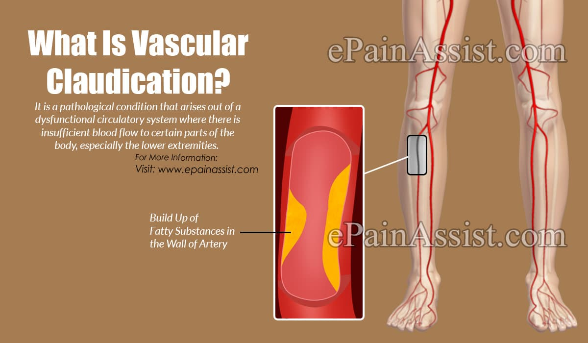 What Is Vascular Claudication?