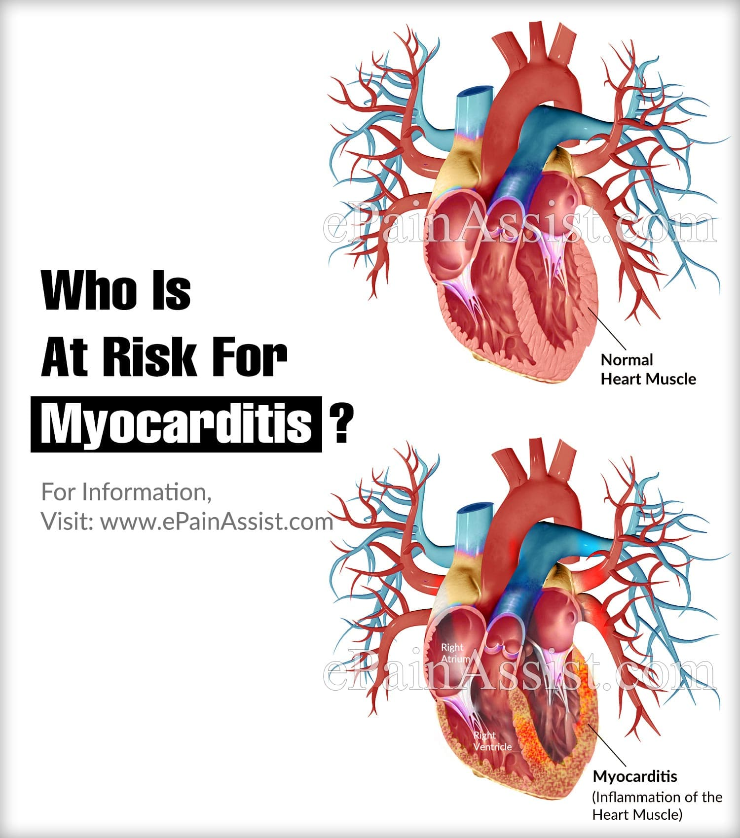 Who Is At Risk For Myocarditis?