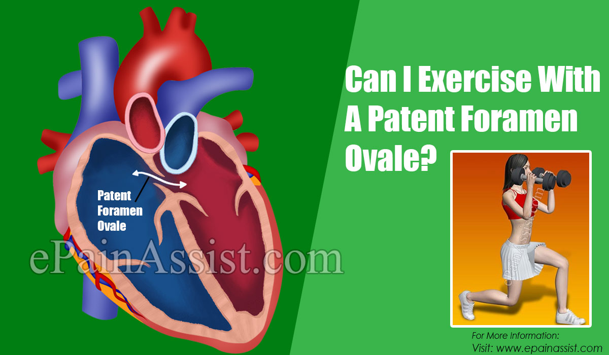 Can I Exercise With A Patent Foramen Ovale?