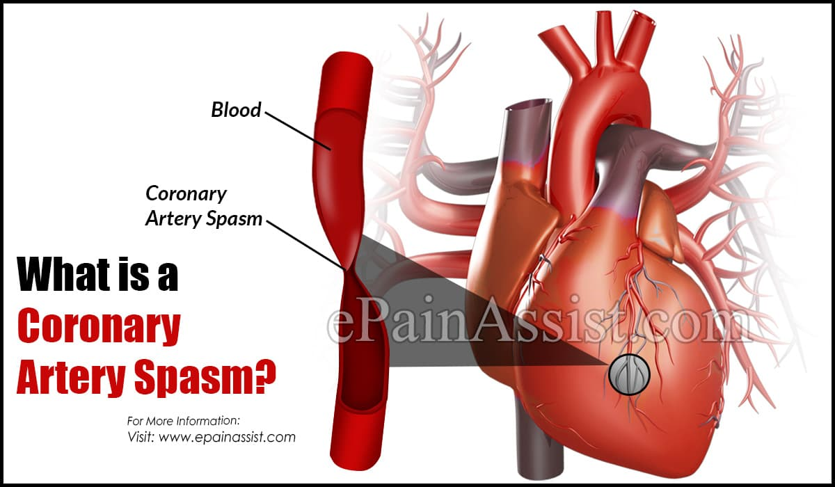 What is a Coronary Artery Spasm?