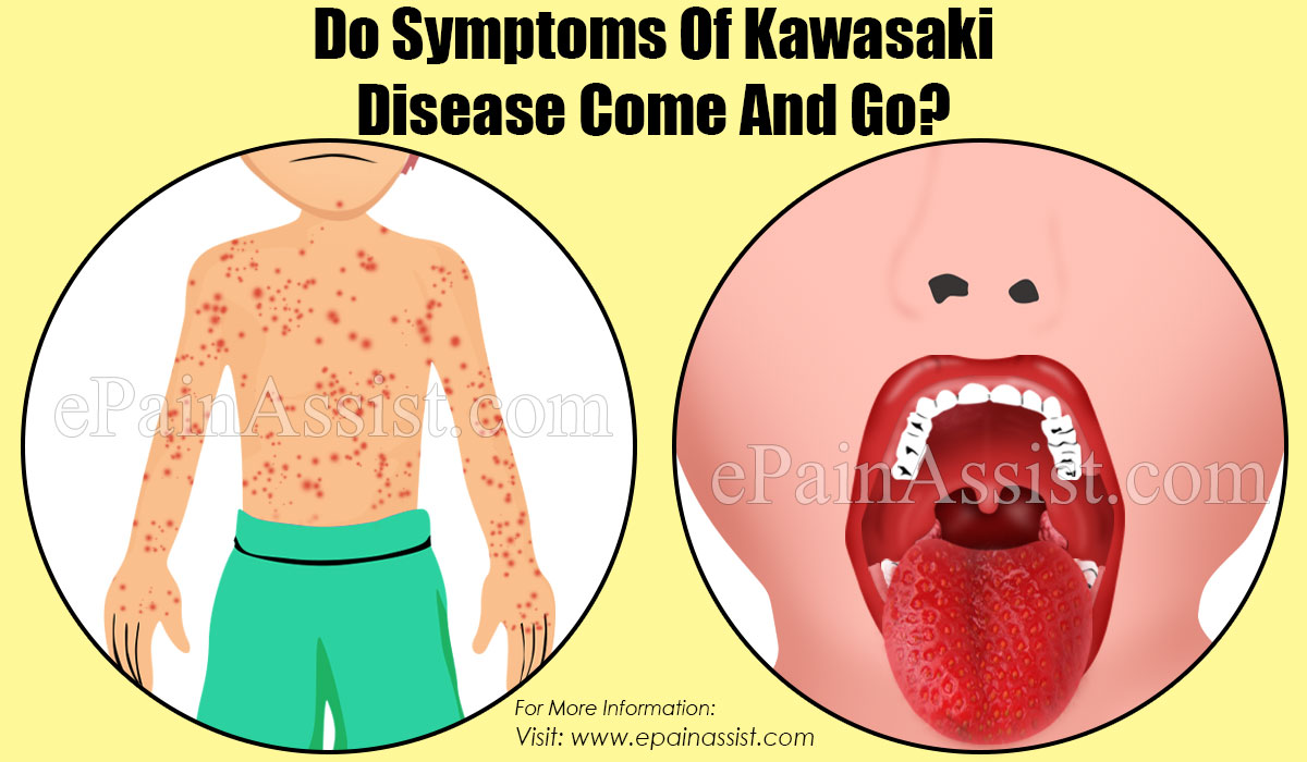 Do Symptoms Of Kawasaki Disease Come And Go?