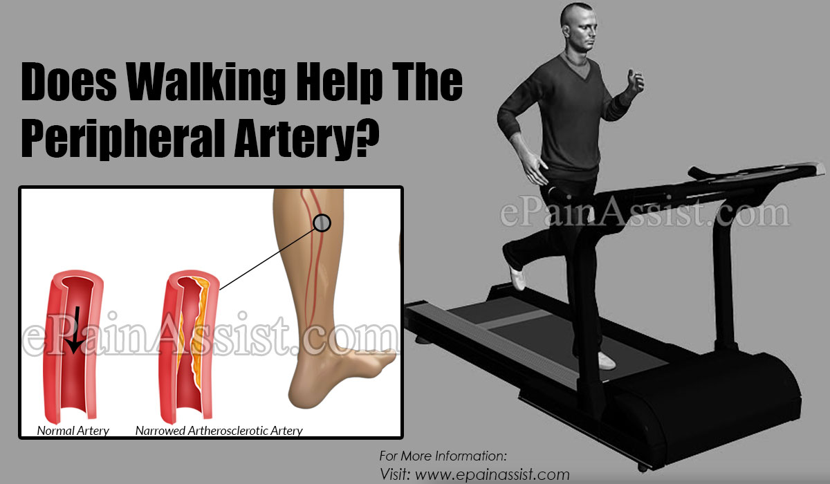 Does Walking Help The Peripheral Artery?