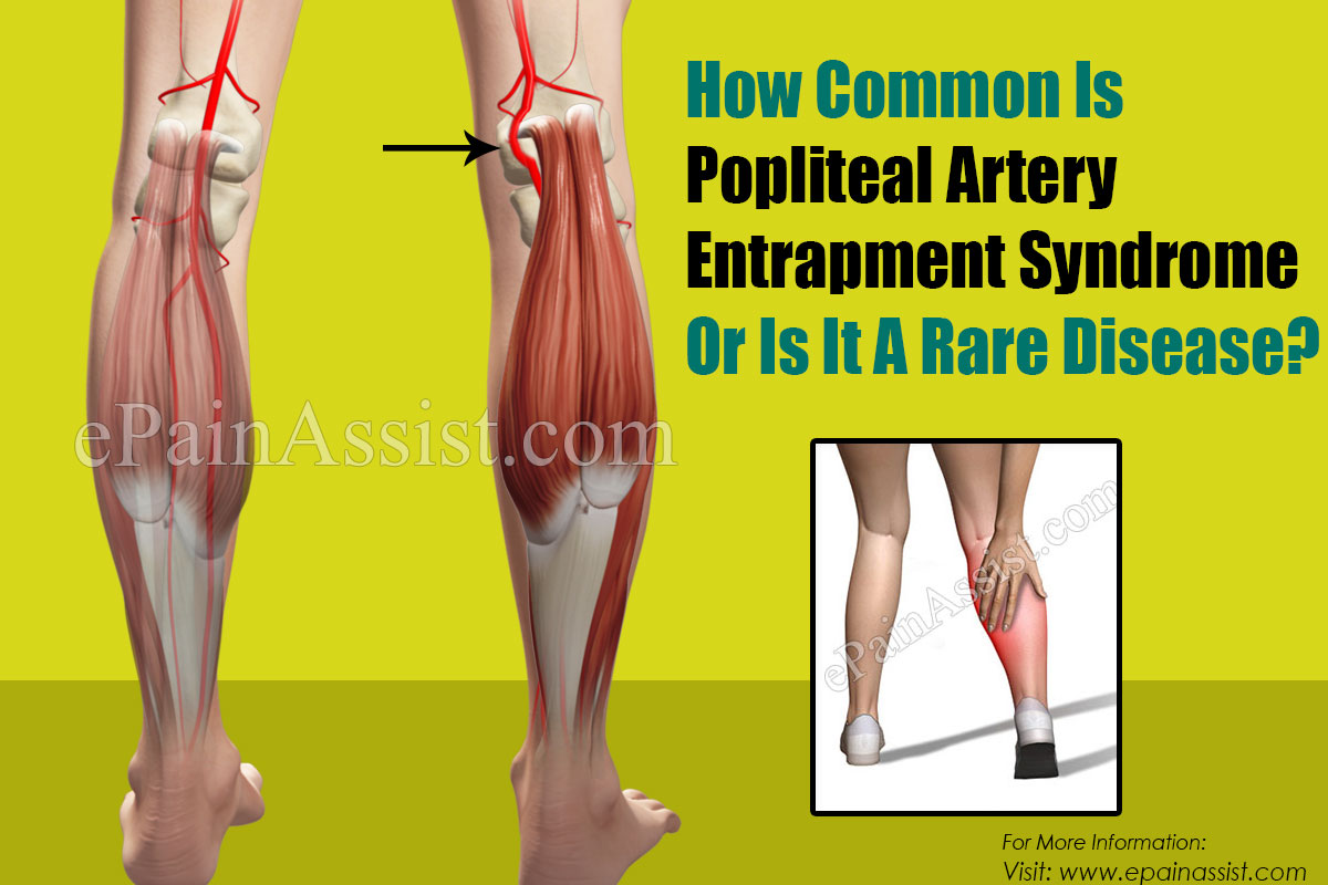 How Common Is Popliteal Artery Entrapment Syndrome Or Is It A Rare Disease?