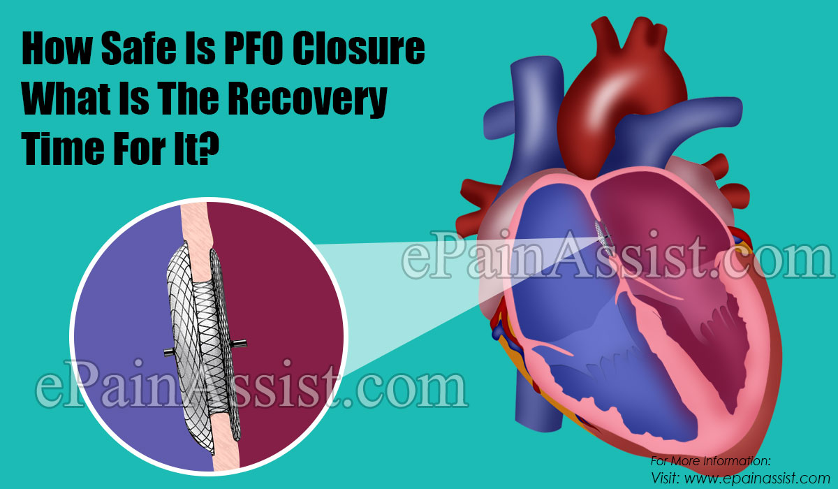 How Safe Is PFO Closure What Is The Recovery Time For It?