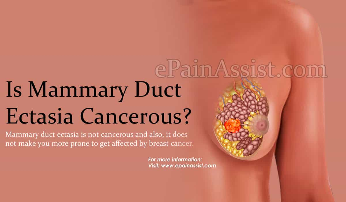 Is Mammary Duct Ectasia Cancerous?