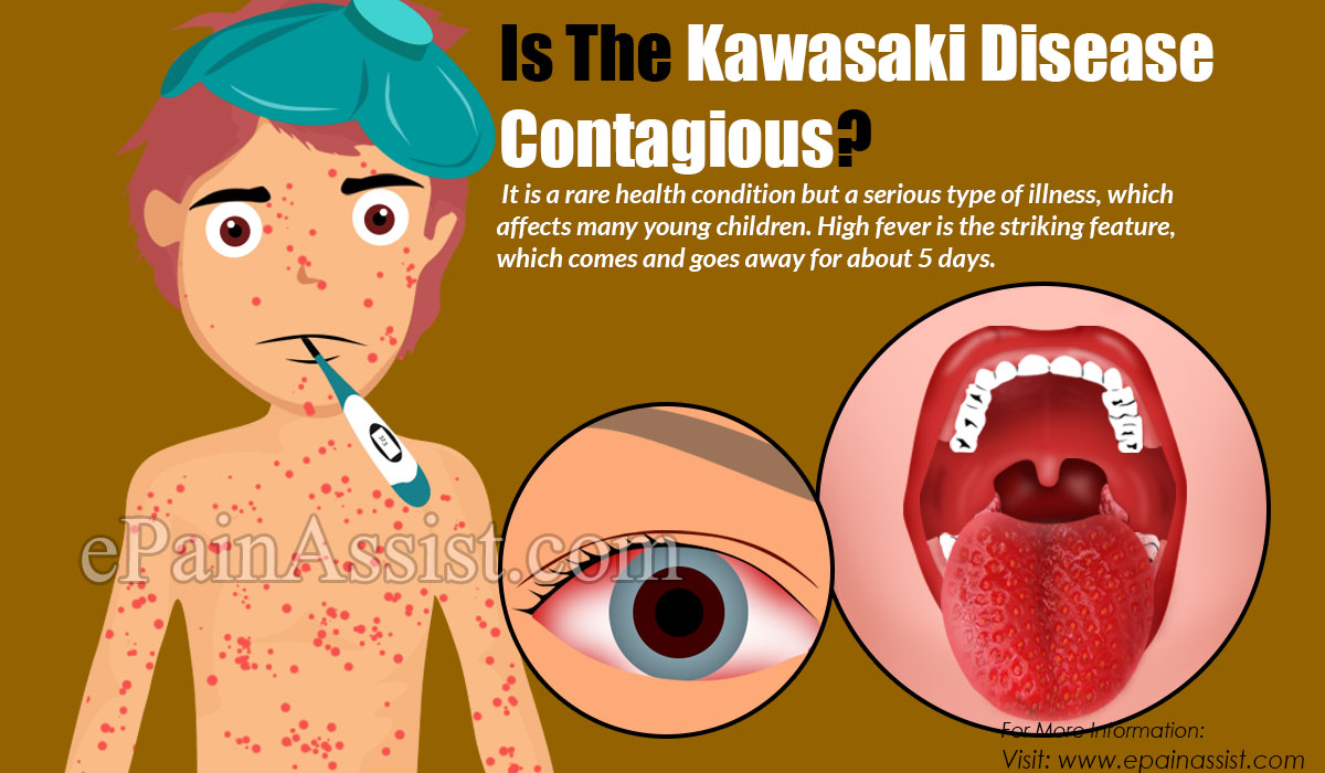 Is The Kawasaki Disease Contagious?