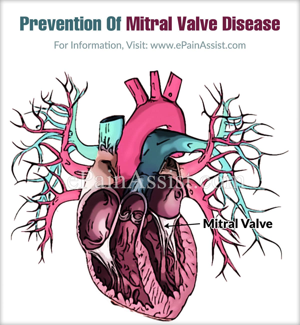 Prevention Of Mitral Valve Disease