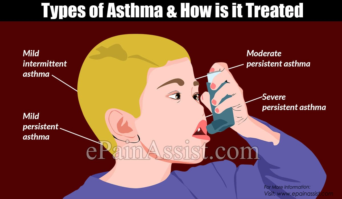 Types of Asthma & How Is It Treated?