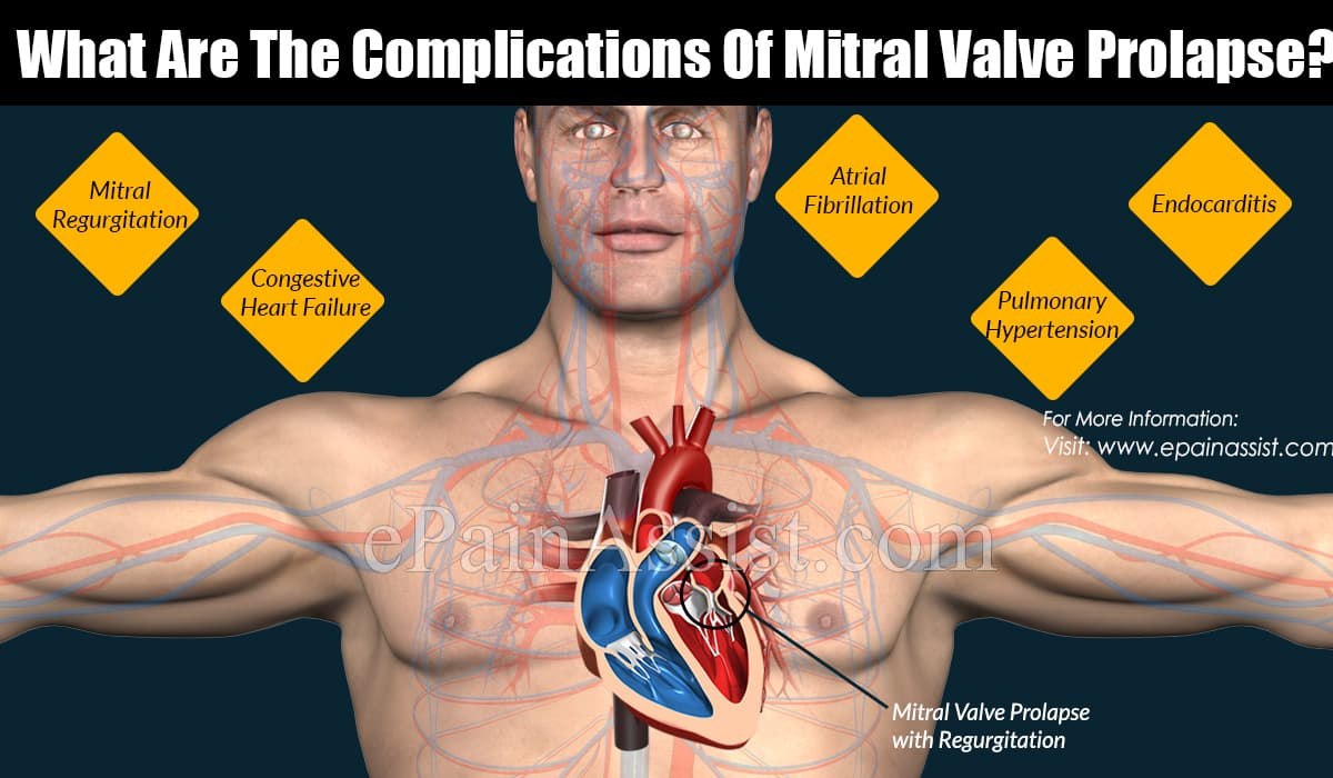 What Are The Complications Of Mitral Valve Prolapse?