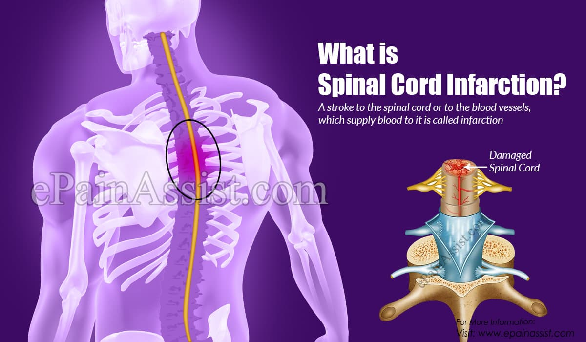 What is Spinal Cord Infarction?
