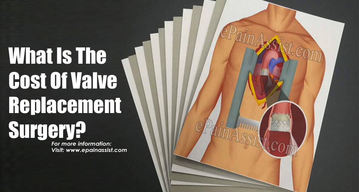 What Is The Cost Of Valve Replacement Surgery?