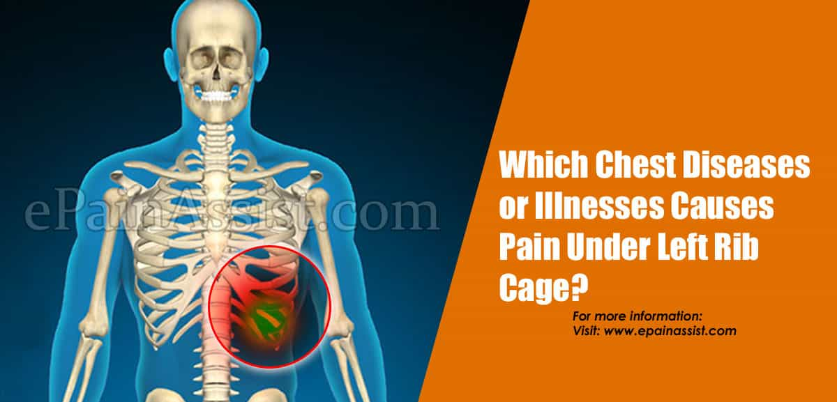 Which Chest Diseases or Illnesses Causes Pain Under Left Rib Cage ?