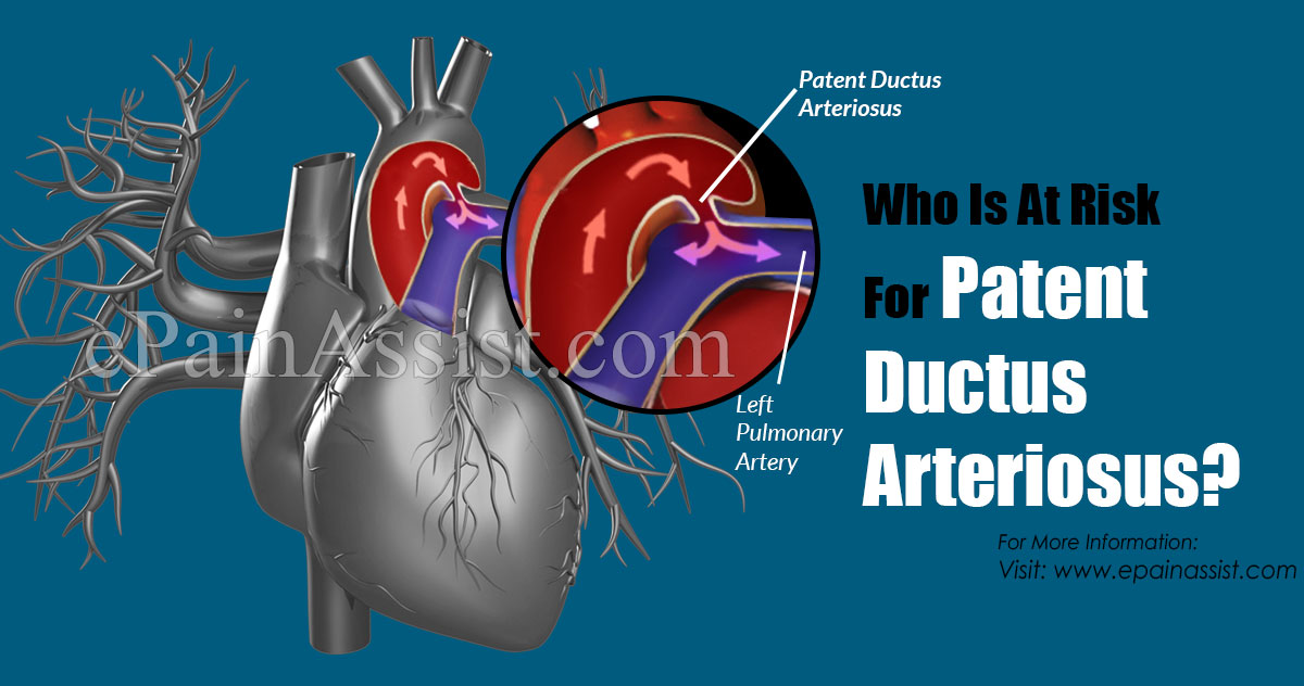 Who Is At Risk For Patent Ductus Arteriosus?
