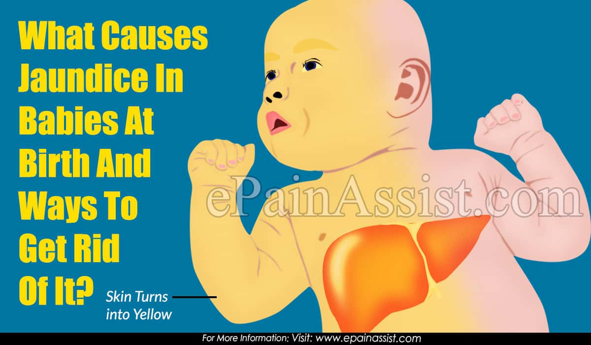 What Causes Jaundice In Babies At Birth?