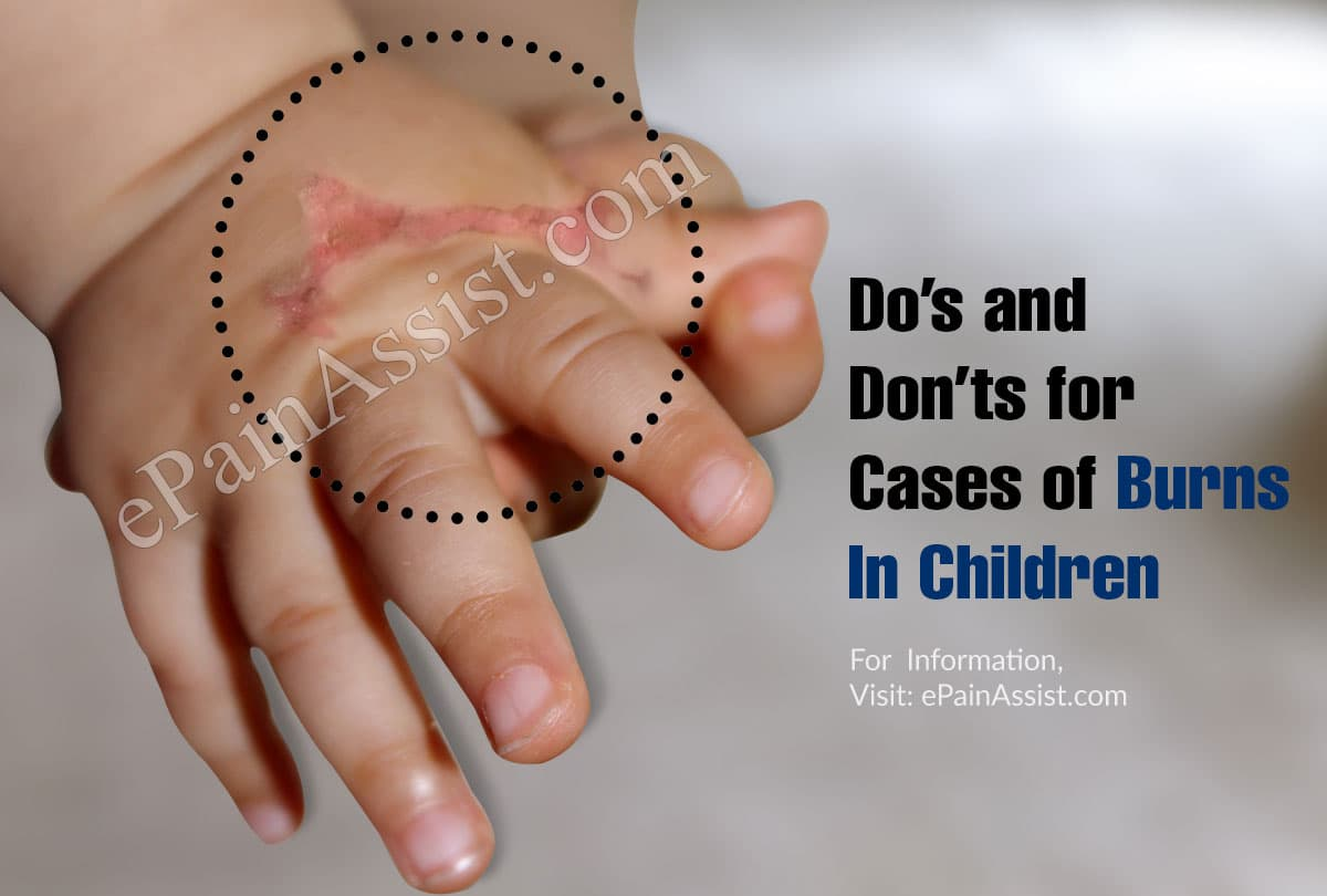 Do's and Don'ts for Cases of Burns In Children