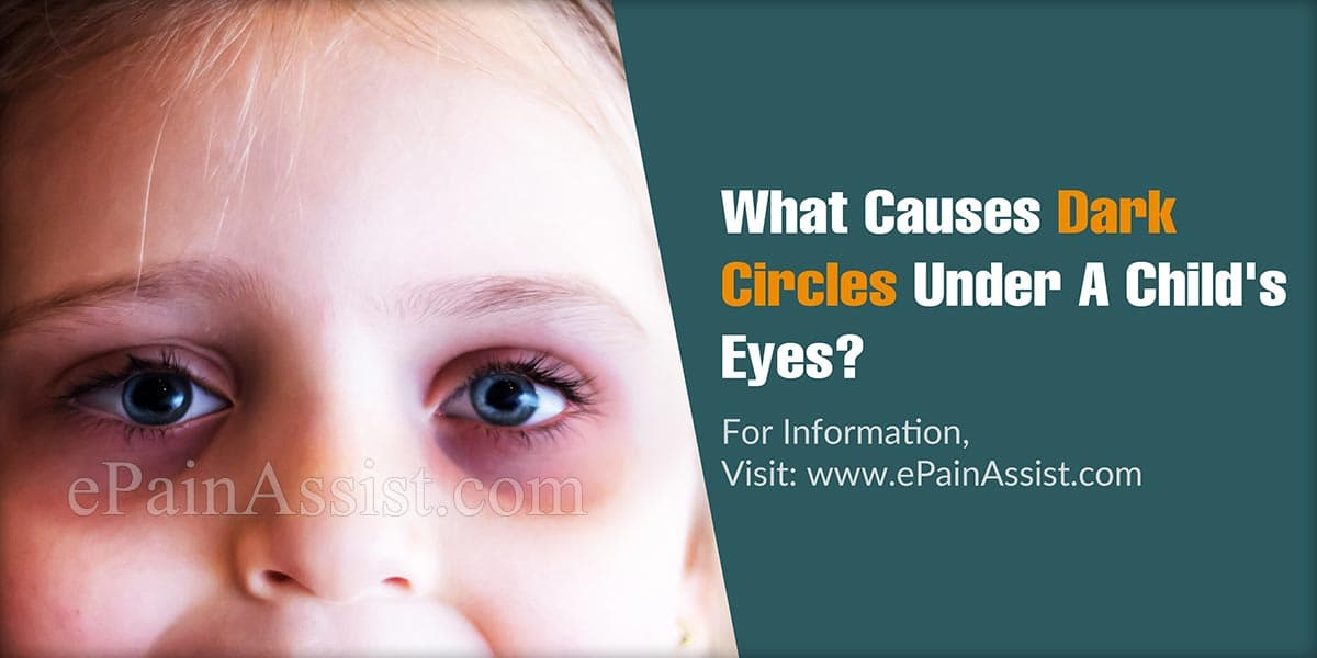 What Causes Dark Circles Under A Child's Eyes?