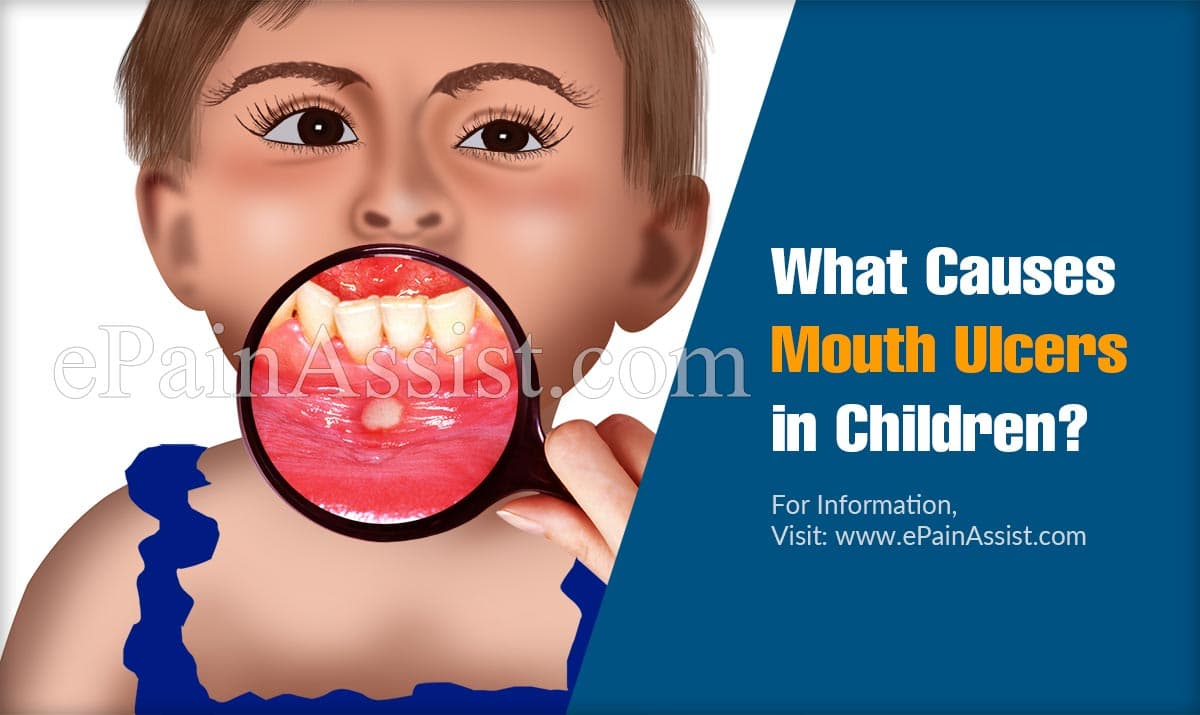 What Causes Mouth Ulcers in Children?