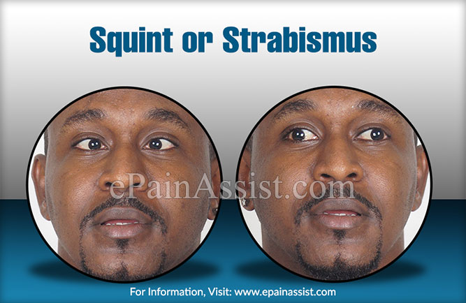 Squint or Strabismus