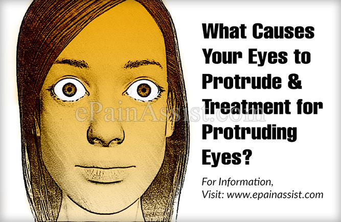 What Causes Your Eyes to Protrude & Treatment for Protruding Eyes?