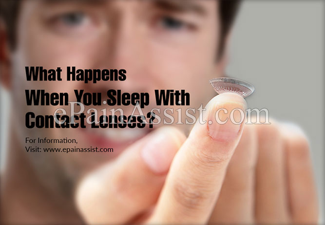 What Happens When You Sleep With Contact Lenses?