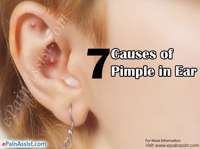 7 Causes of Pimple in Ear