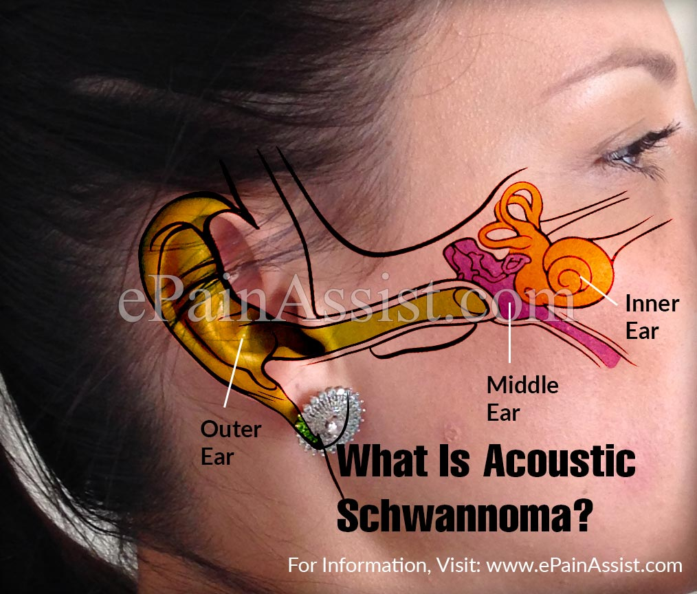 What Is Acoustic Schwannoma or Vestibular Schwannoma?