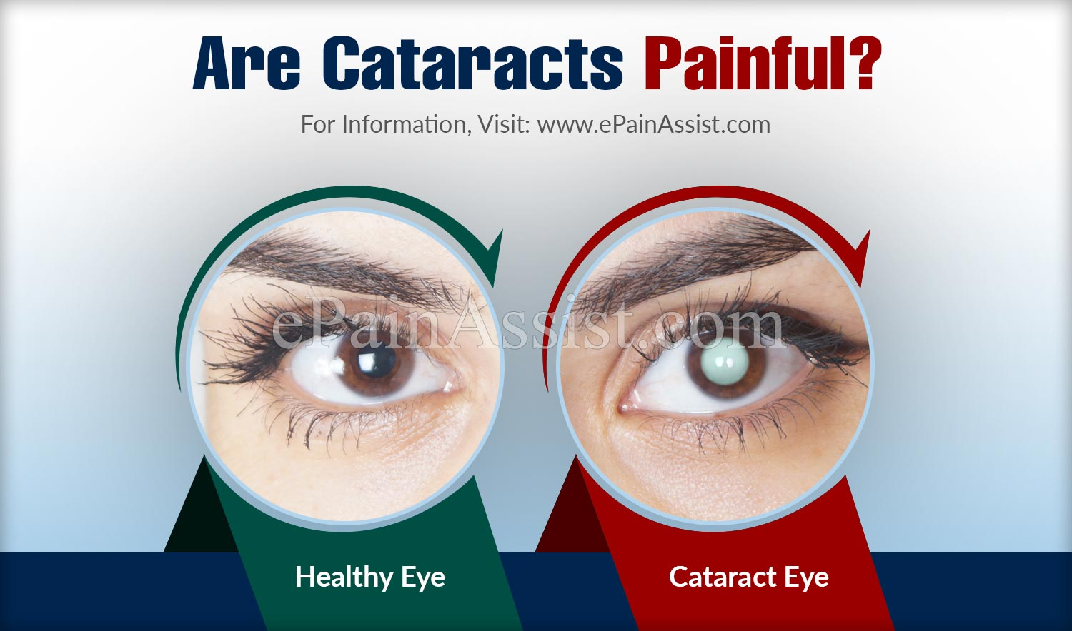Are Cataracts Painful?